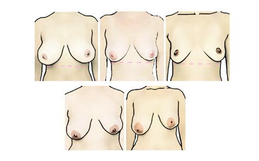 tipos de pechos: pechos asimétricos