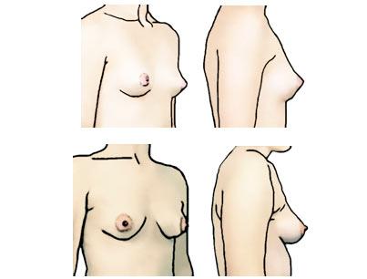 Tipos de pechos: pechos cónicos