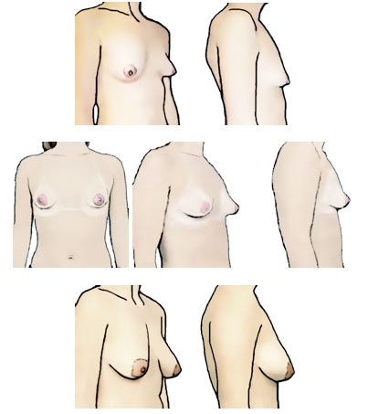 Tipos de pechos: pechos delgados