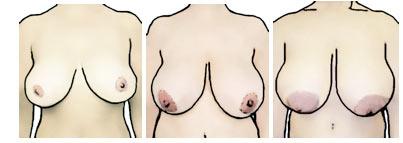 Tipos de pechos: pechos omega